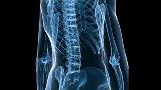 eos-un-systeme-revolutionnaire-de-radiographie